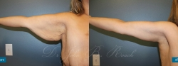 brachioplasty_patient01_03