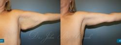 brachioplasty_patient01_04