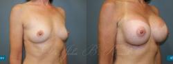 breastaug_patient04_02