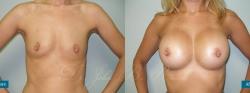 breastaug_patient05_01
