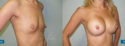 breastaug_patient05_02