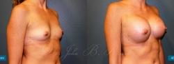 breastaug_patient07_02