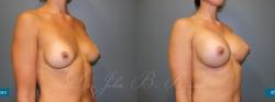 breastaug_patient18_02